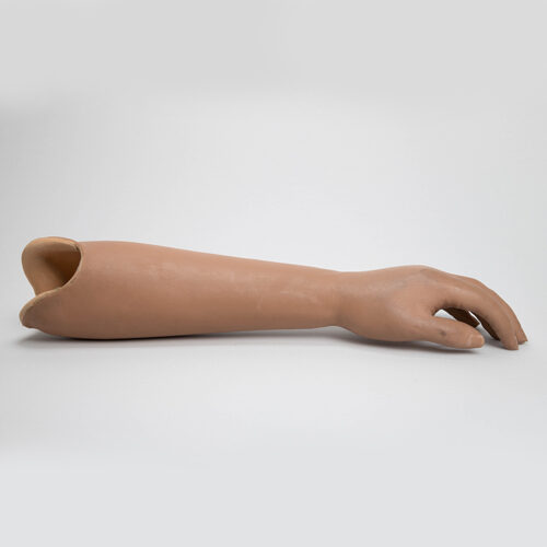 Unterarmprothese mit passiver Bewegungsmöglichkeit der Fingergruppe